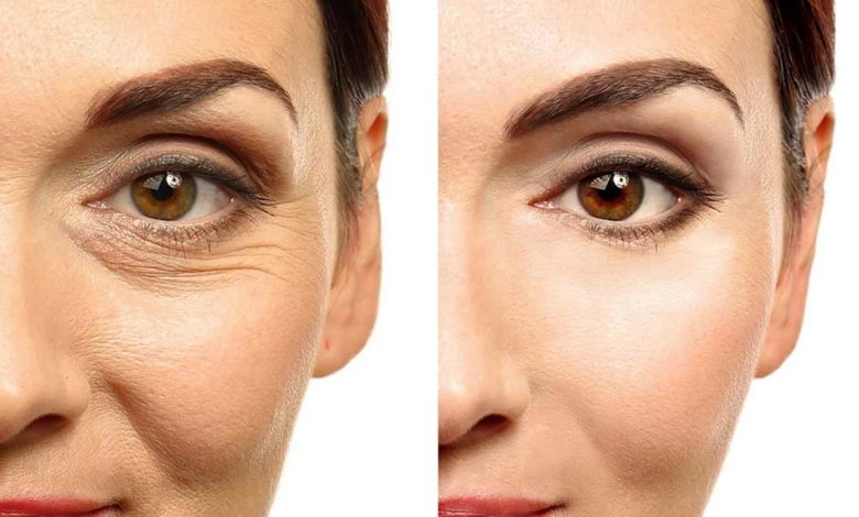 face-wrinkles-home-remedies-in-hindi